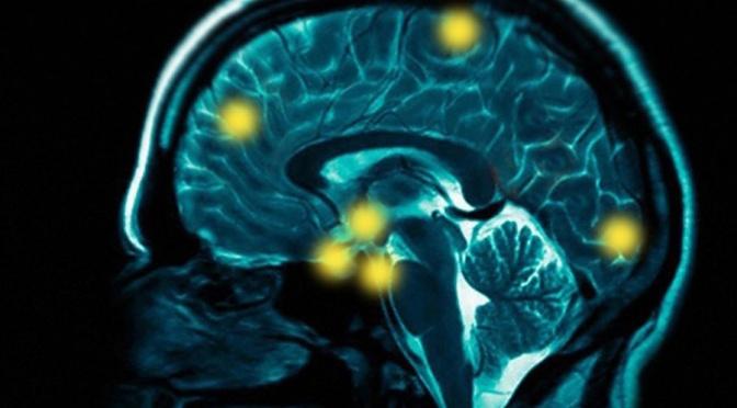 Addiction Brain Scans, Unscrambled